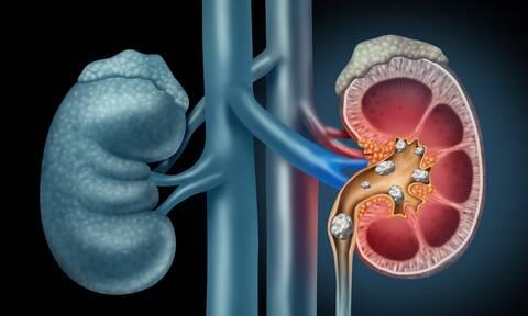 Πέτρες στα νεφρά: Τι πρέπει να προσέχετε στη διατροφή για να τις προλάβετε (εικόνες)