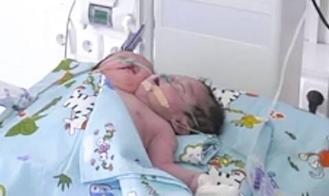 Γεννήθηκε βρέφος με δύο κεφάλια - «Μάχη» για να κρατηθεί στη ζωή (pics)