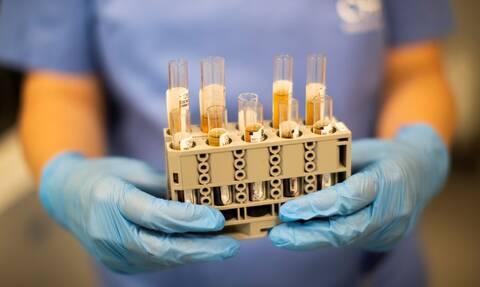 Κορονοϊός: Εξελίξεις στην κλινική έρευνα για την αντιμετώπιση της COVID-19 σοβαρής πνευμονίας