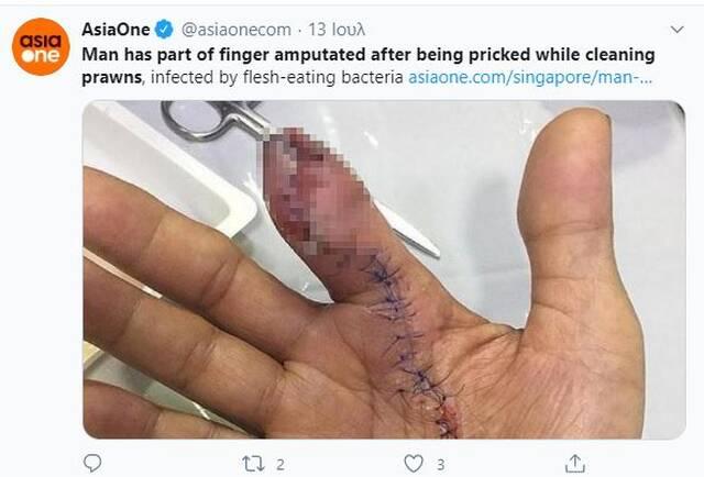 Καθάριζε γαρίδες – Δείτε τι κόλλησε και του έκοψαν το δάχτυλο (Σκληρές Εικόνες) Newsroom Newsroom