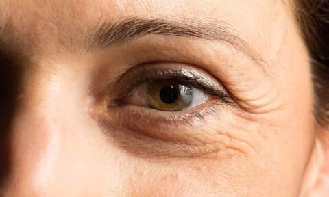 Έχεις ρυτίδες στα μάτια; Πρέπει να μάθεις κάτι