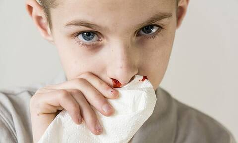 Παιδική ρινορραγία: Γιατί «ανοίγει» η  μύτη του παιδιού σας