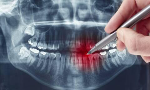Τερηδόνα: Τι θα συμβεί αν αμελήσετε μία τρύπα στo δόντι (εικόνες)
