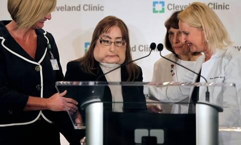 ΗΠΑ: Πέθανε η πρώτη Αμερικανίδα που έκανε μεταμόσχευση προσώπου (ΣΚΛΗΡΕΣ ΕΙΚΟΝΕΣ)