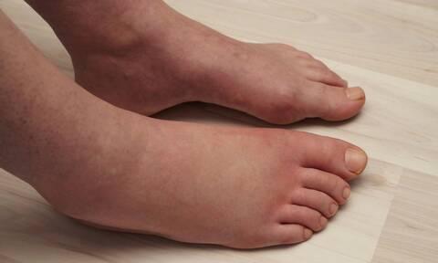 Πρησμένα πόδια: 5 πιθανές αιτίες που πρέπει να γνωρίζετε (pics)