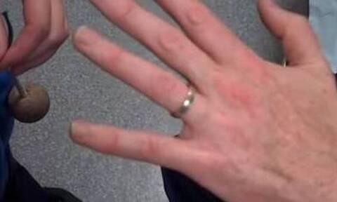 Σφήνωσε το δαχτυλίδι στο χέρι σας; Με αυτό το κόλπο θα το βγάλετε αμέσως (pics+vid)