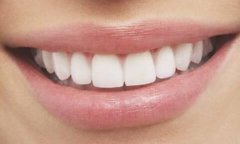 To ήξερες; Με αυτά τα τρόφιμα δεν σε νοιάζει αν δεν πλύνεις δόντια