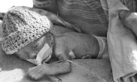 Αυτό το προωράκι γεννήθηκε μόλις 680 γραμμάρια