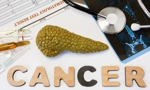 Καρκίνος στο πάγκρεας: Η επέμβαση που μειώνει τον κίνδυνο θανάτου