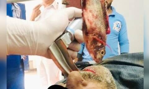 Τρομακτικό ατύχημα: Ζωντανό ψάρι σφήνωσε στον λαιμό ψαρά – Σκληρές εικόνες! (vid)