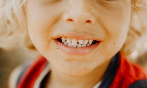 Πείραμα δείχνει στα παιδιά τι θα συμβεί στα δόντια τους αν δεν τα πλύνουν