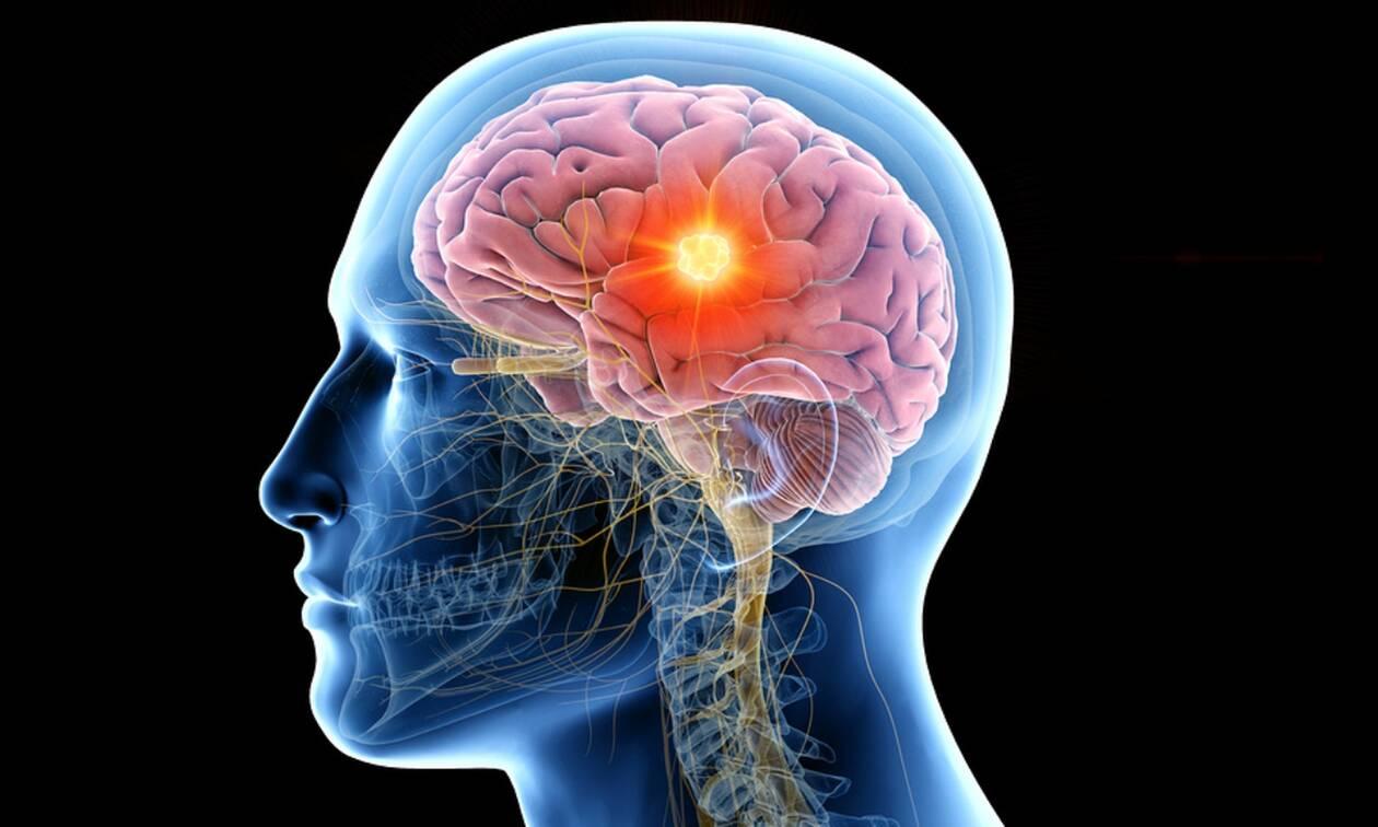 Όγκος στον εγκέφαλο: 6 σημεία-κλειδιά που πρέπει να γνωρίζετε (εικόνες)