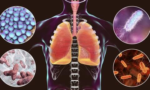 Λοίμωξη από σταφυλόκοκκο: 6 συμπτώματα σε εικόνες