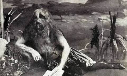 Top10: Οι δέκα πιο σπάνιες και παράξενες ασθένειες στην ιστορία της ανθρωπότητας