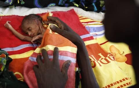 ΟΗΕ: Έκθεση-σοκ με φόντο την πανδημία- 30 εκατομμύρια άνθρωποι στα όρια της λιμοκτονίας