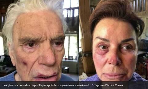 Γαλλία : Σοκάρουν οι φωτογραφίες του Μπερνάρ Ταπί μετά τη βίαιη διάρρηξη στο διαμέρισμά του