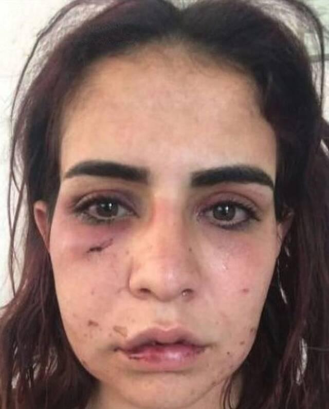Η 24χρονη Beyza Yurttas