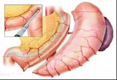Επιμήκης γαστρεκτομή ή γαστρικό μανίκι ή «sleeve gastrectomy»