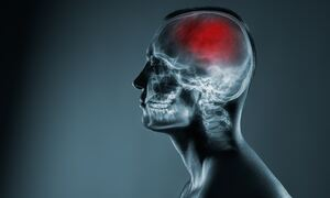 Αγγειακό εγκεφαλικό: Οι παράγοντες που πρέπει να ελέγχετε (εικόνες)