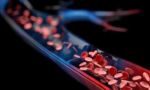 Μελέτη: Συνδυαστική θεραπεία μείωσε τα ισχαιμικά επεισόδια σε ασθενείς με περιφερική αρτηριακή νόσο