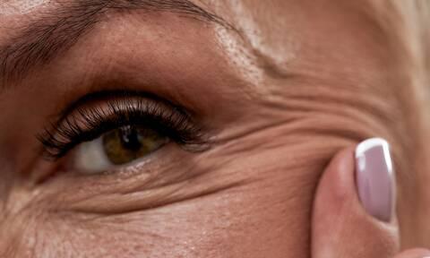 Ρυτίδες: Τι δείχνουν για την υγεία σας (εικόνες)