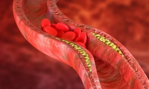 Περιφερική αρτηριοπάθεια: Τα συμπτώματα που πρέπει να γνωρίζετε (εικόνες)