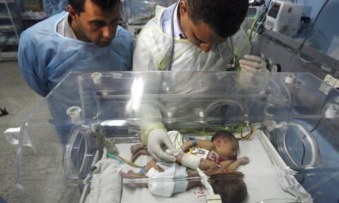 Σαουδική Αραβία: Ομάδα γιατρών κατάφερε να διαχωρίσει ένα βρέφος από το παρασιτικό δίδυμό του