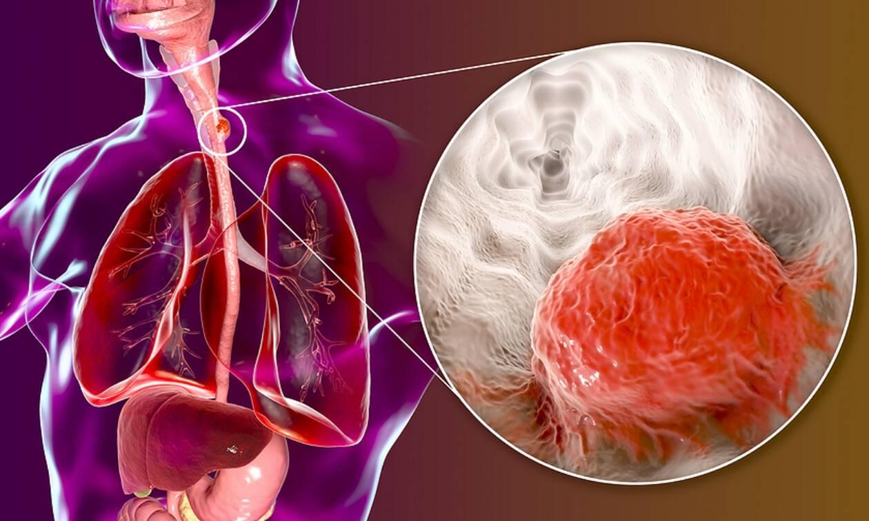 Καρκίνος οισοφάγου: Πώς θα μειώσετε τον κίνδυνο (εικόνες)