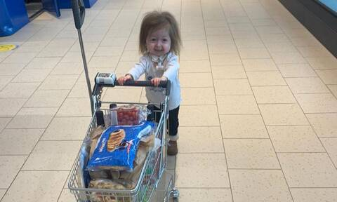 Αυτή είναι η 4χρονη με την ασθένεια «Benjamin Button» (pics+vid)