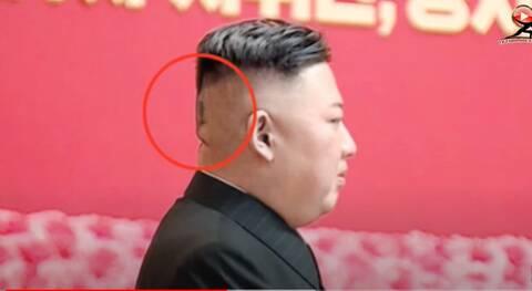 Ο Κιμ Γιονγκ Ουν με τσιρότο