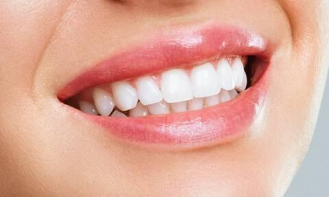 Τροφές που βοηθούν στην λεύκανση των δοντιών