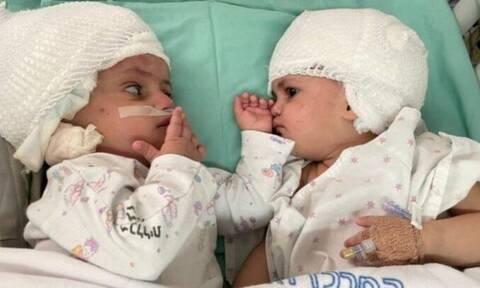 Ισραήλ: Διαχωρίστηκαν επιτυχώς σιαμαία ενωμένα στο κεφάλι