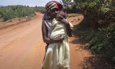 Ρουάντα: Παιδί γεννήθηκε με σπάνια παραμορφωτική ασθένεια - Το παράτησε ο πατέρας του