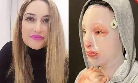 Επίθεση βιτριόλι -Συγκλονίζει η Ιωάννα: Όσα χρόνια κι αν καταδικαστεί, εγώ καταδικάστηκα περισσότερα