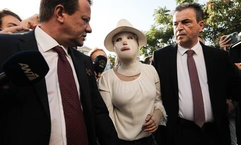 Ιωάννα Παλιοσπύρου: Τι της ζήτησε ο δικηγόρος της γυναίκας που της πέταξε το βιτριόλι