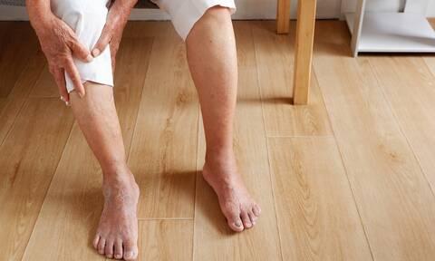 Πρόβλημα κυκλοφορίας στα πόδια: Οι πιθανές αιτίες (εικόνες)