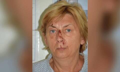 Κροατία: Θρίλερ με γυναίκα που βρέθηκε σε απομακρυσμένο νησί - Δεν θυμάται ούτε το όνομά της