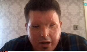 Ανδρέας Χριστοφέρος: Το θύμα επίθεσης με οξύ στέλνει το δικό του μήνυμα στην Ιωάννα (video)