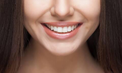 Λεύκανση δοντιών - Προϊόντα για ένα όμορφο χαμόγελο