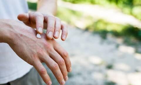 Έρευνα: Περισσότεροι από 195 εκατομμύρια ενήλικες έχουν τουλάχιστον ένα δερματολογικό πρόβλημα