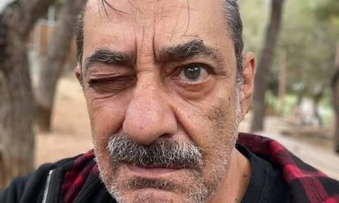 Αντώνης Καφετζόπουλος: «Τα σκατ....ε» - Η ανάρτηση «γροθιά» στο στομάχι